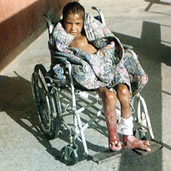 a kid wounded by us bomb